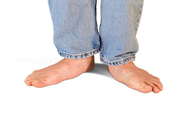 how to fix pronated feet