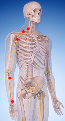 Is A Pinched Nerve Causing The Numbness And Tingling In Your Hands