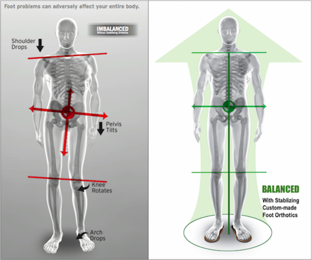 This is an image of posture being improved by custom foot orthotics.